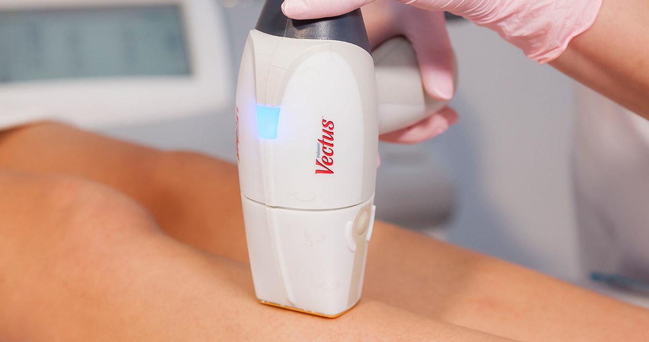 Jaki laser do depilacji lepszy Vectus czy Lightsheer